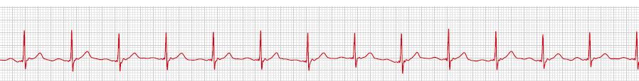Ruhe-EKG einer gesunden Person