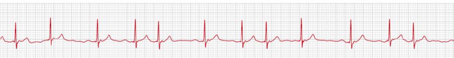 Ruhe-EKG einer Person mit persistierendem Vorhofflimmern